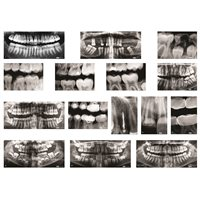 Dental X-Rays- Pack of 10